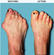 Bunions - Pre & Post Operative view